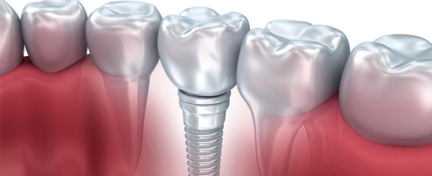 Лечение зубов в Одессе