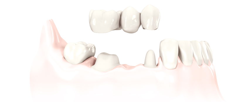 Зубные протезы в Одессе