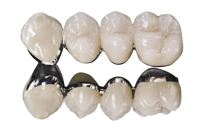Зубные коронки в Одессе